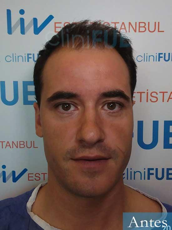 Carlos 29 Cordoba injerto de pelo dia operacion antes