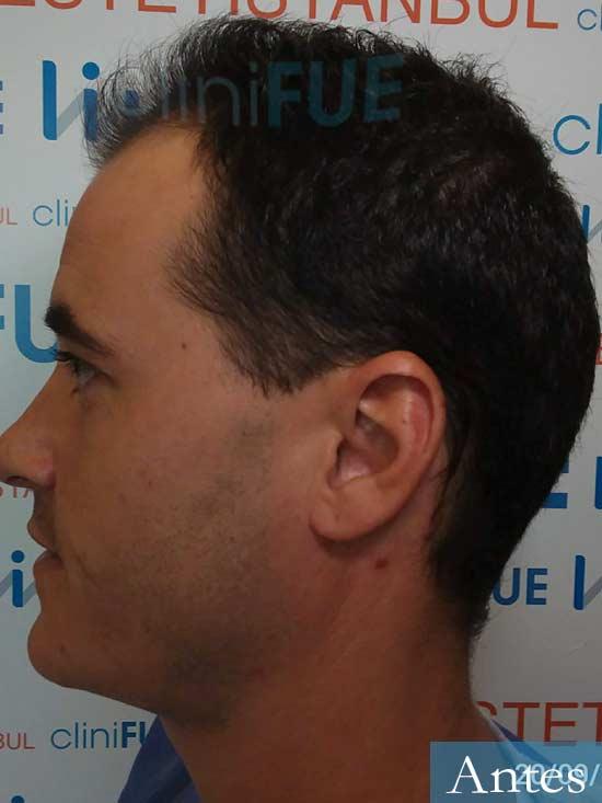 Carlos 29 Cordoba injerto de pelo dia operacion antes 4