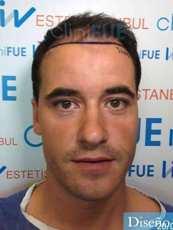Carlos-29-Cordoba-trasplante-pelo-dia-operacion-diseno-1