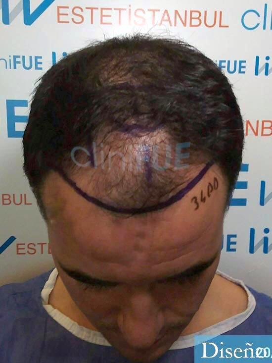 Carlos-29-Cordoba-trasplante-pelo-dia-operacion-diseno-2