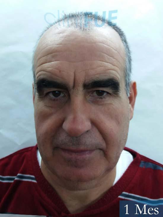 Carlos 59 Madrid injerto de pelo 1 mes
