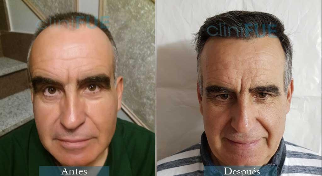 Injerto capilar de Carlos 59 Años de Madrid con cliniFUE