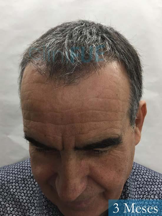 Carlos 59 Madrid injerto de pelo 3 meses