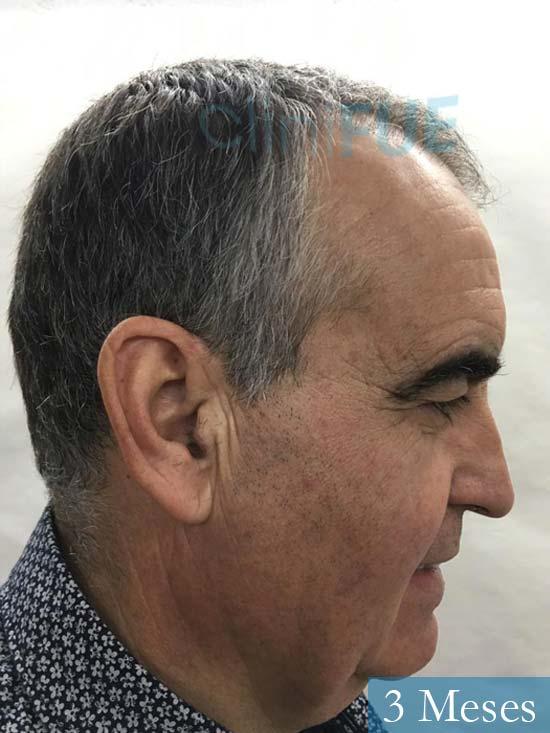 Carlos 59 Madrid injerto de pelo 3 meses 3