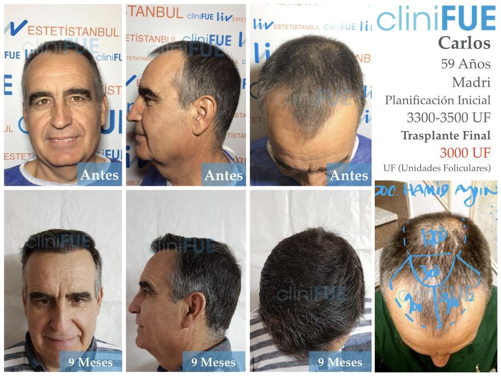 Carlos 59 Madrid injerto de pelo