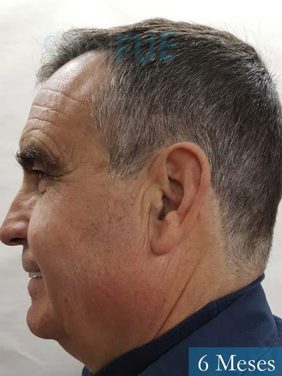 Carlos 59 Madrid injerto de pelo 6 meses 5