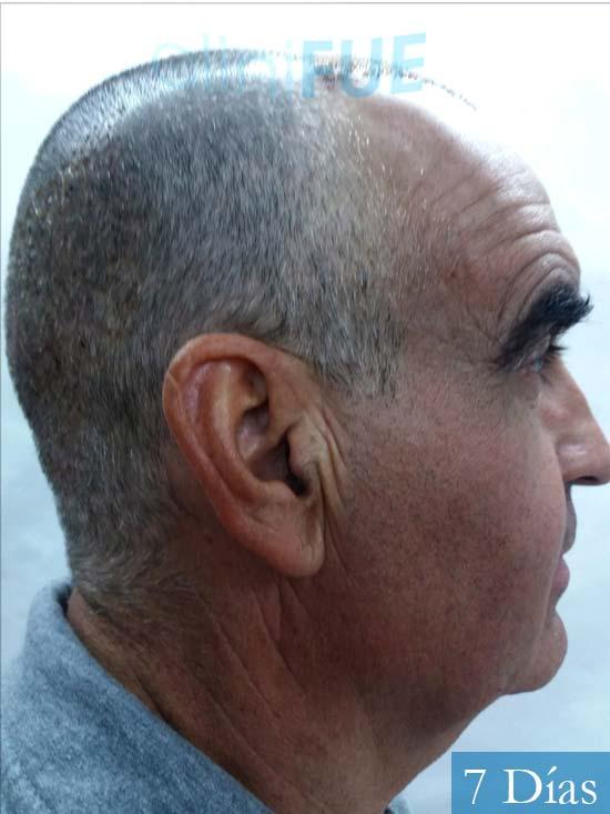 Carlos 59 Madrid injerto de pelo 7 dias 4