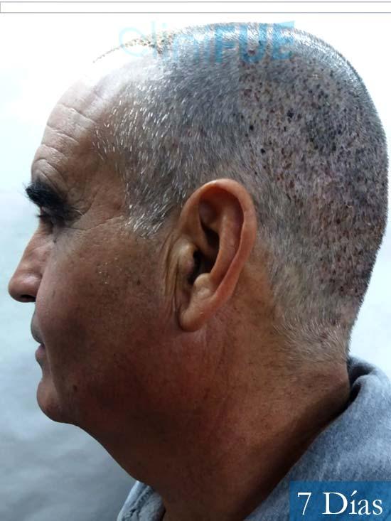 Carlos 59 Madrid injerto de pelo 7 dias 5