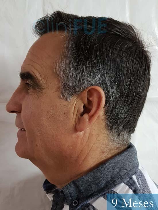 Carlos 59 Madrid injerto de pelo 9 meses 5