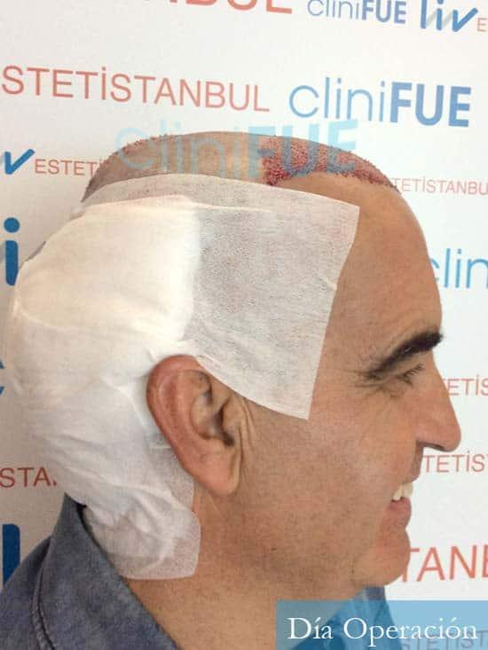 Carlos 59 Madrid injerto de pelo dia operacion 2