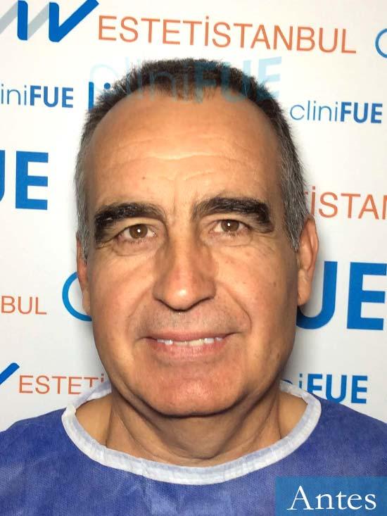 Carlos 59 Madrid injerto de pelo Antes