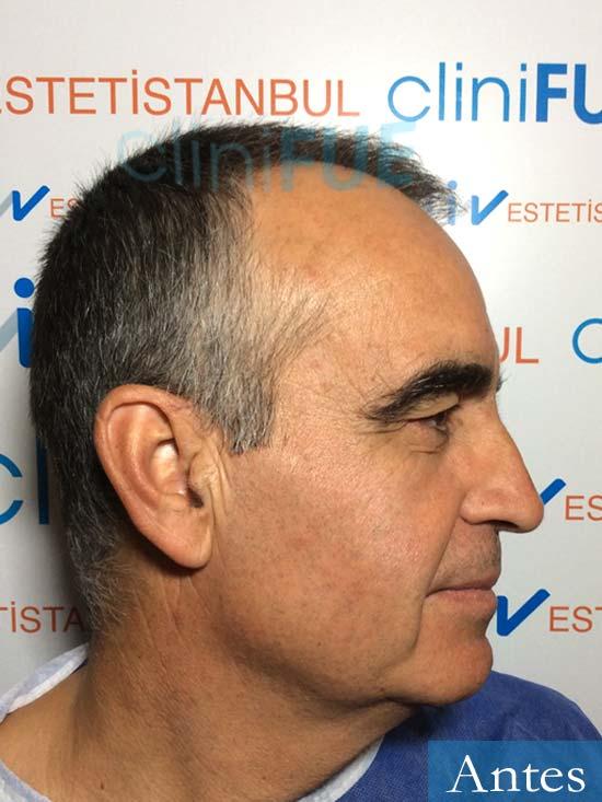 Carlos 59 Madrid injerto de pelo Antes 3