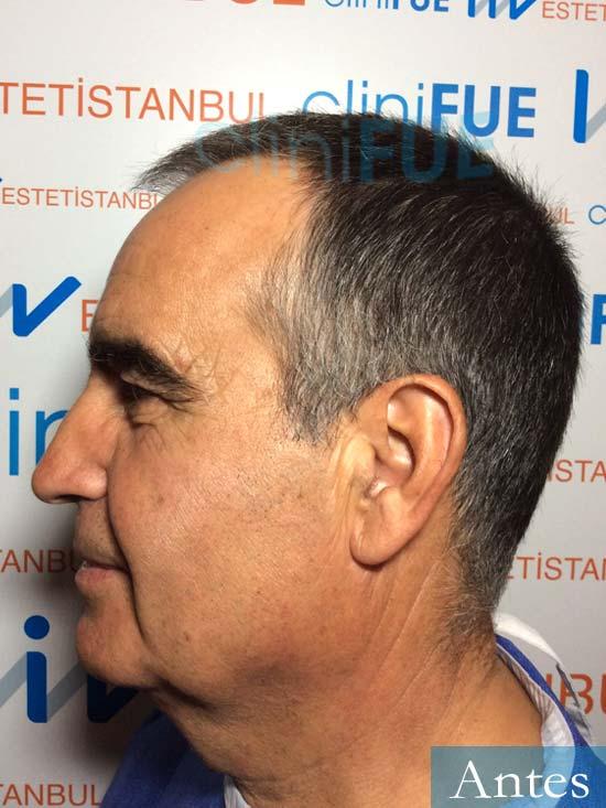 Carlos 59 Madrid injerto de pelo Antes 4