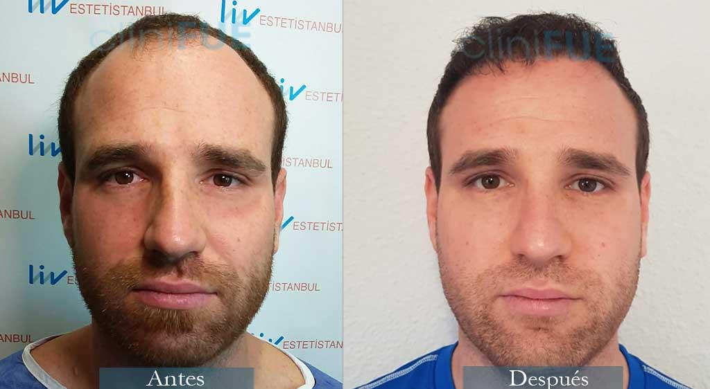 Injerto capilar de David 32 Años de Almería con cliniFUE