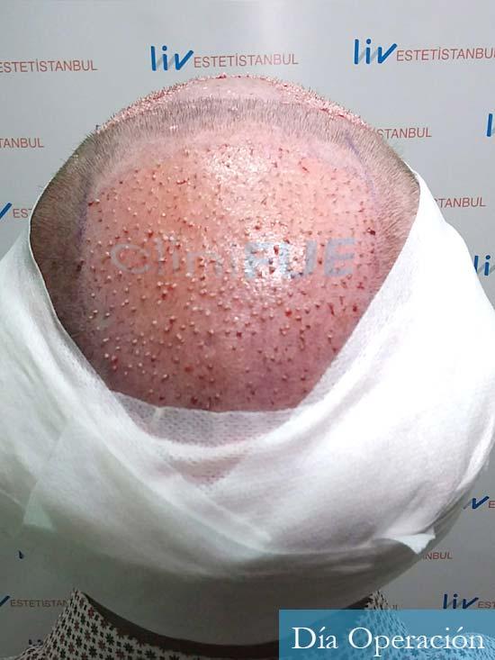 David 32 Almeria injerto de pelo dia operacion 9