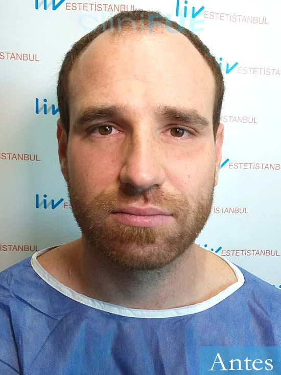 David 32 Almeria injerto de pelo dia operacion antes