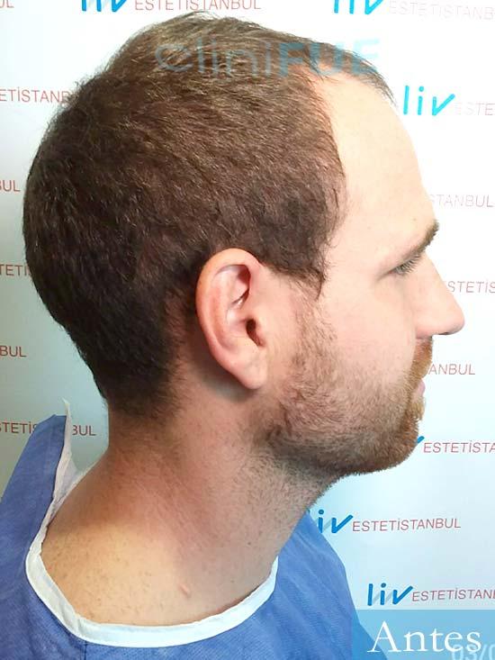 David 32 Almeria injerto de pelo dia operacion antes 3