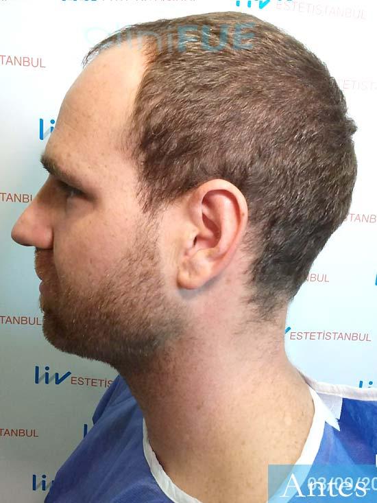 David 32 Almeria injerto de pelo dia operacion antes 4