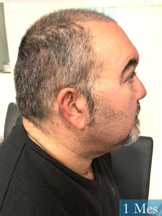 Mikel 49 Vizcaya injerto de pelo 1 mes 2