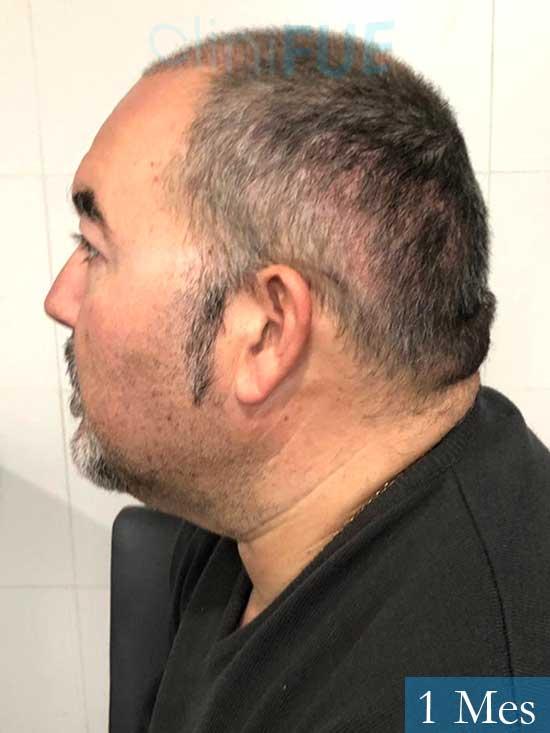 Mikel 49 Vizcaya injerto de pelo 1 mes 3