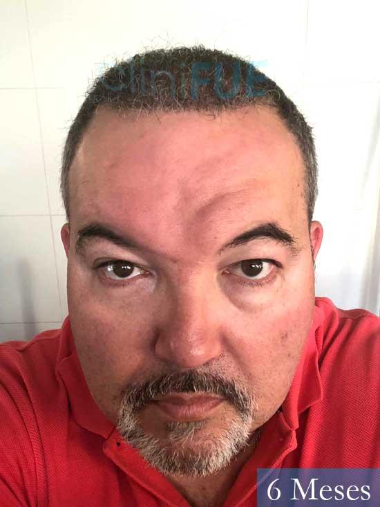 Mikel 49 Vizcaya injerto de pelo 6 meses