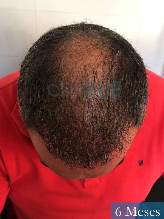 Mikel 49 Vizcaya injerto de pelo 6 meses 2