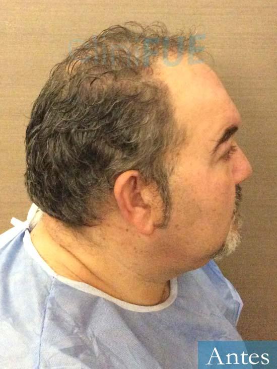 Mikel 49 Vizcaya injerto de pelo dia operacion Antes 3