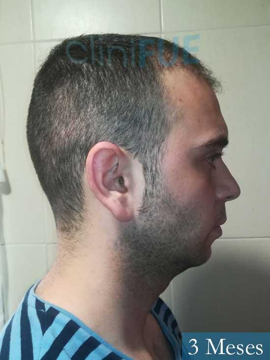 Ruben 26 Albacete injerto de pelo 3 meses 3