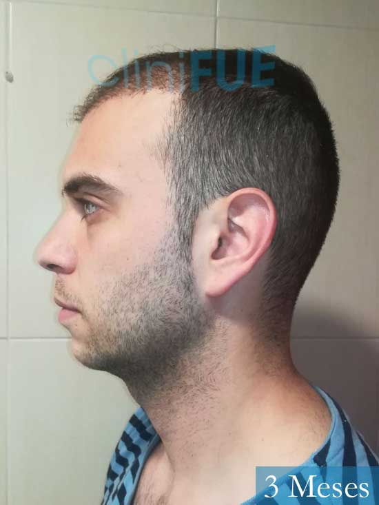 Aaron 26 Barcelona injerto de pelo 6 meses 4