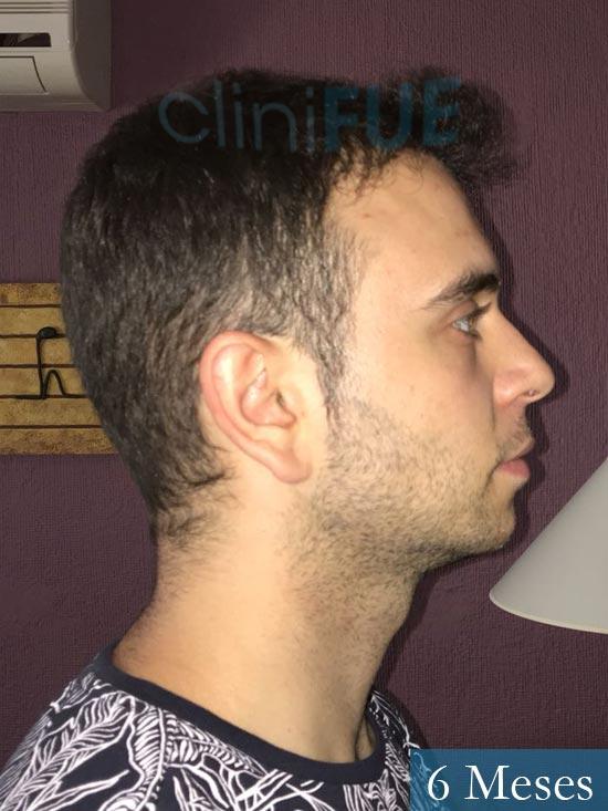Ruben 26 Albacete injerto de pelo 6 meses 4