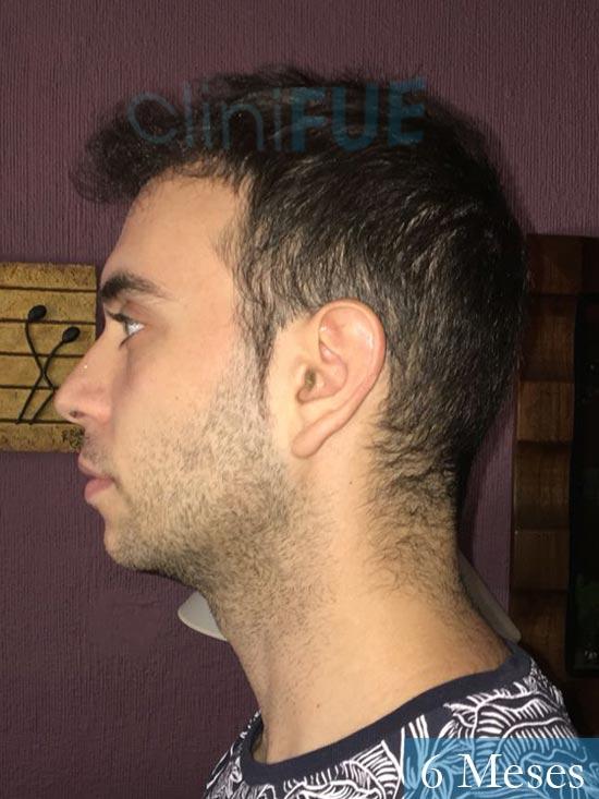 Ruben 26 Albacete injerto de pelo 6 meses 5