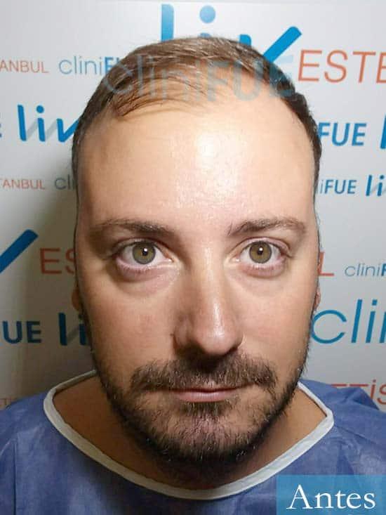 Ruben-28-Barcelona-trasplante-capilar-dia-operacion-diseno-2.jpg Ruben-28-Barcelona-trasplante-capilar-dia-operacion- antes
