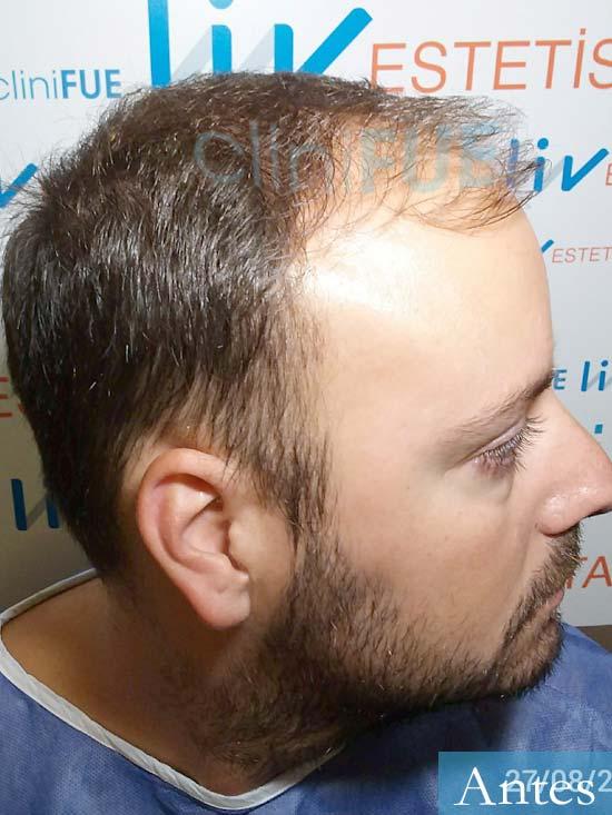 Ruben-28-Barcelona-trasplante-capilar-dia-operacion-diseno-2.jpg Ruben-28-Barcelona-trasplante-capilar-dia-operacion- antes 3