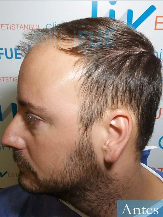 Ruben-28-Barcelona-trasplante-capilar-dia-operacion-diseno-2.jpg Ruben-28-Barcelona-trasplante-capilar-dia-operacion- antes 4