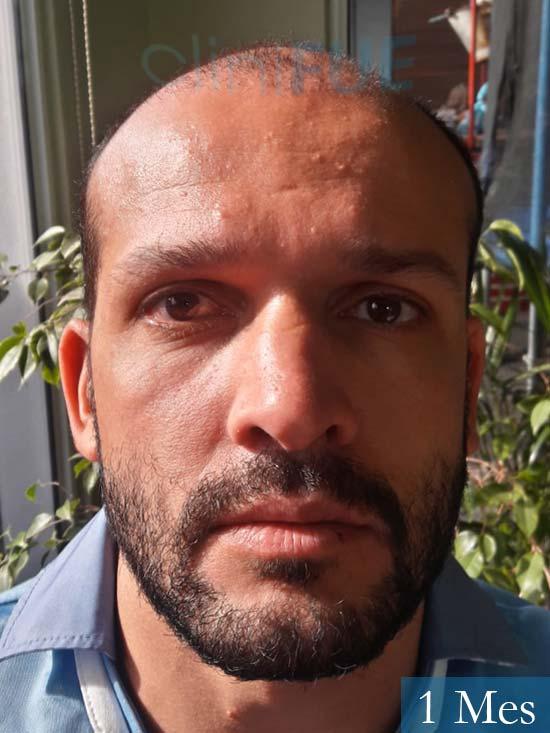 Sergio 38 Uruguay injerto de pelo 1 mes