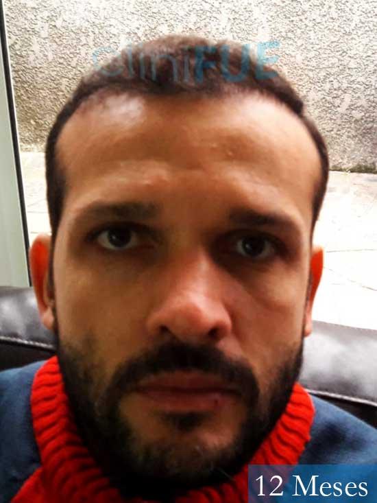 Sergio 38 Uruguay injerto de pelo 12 meses