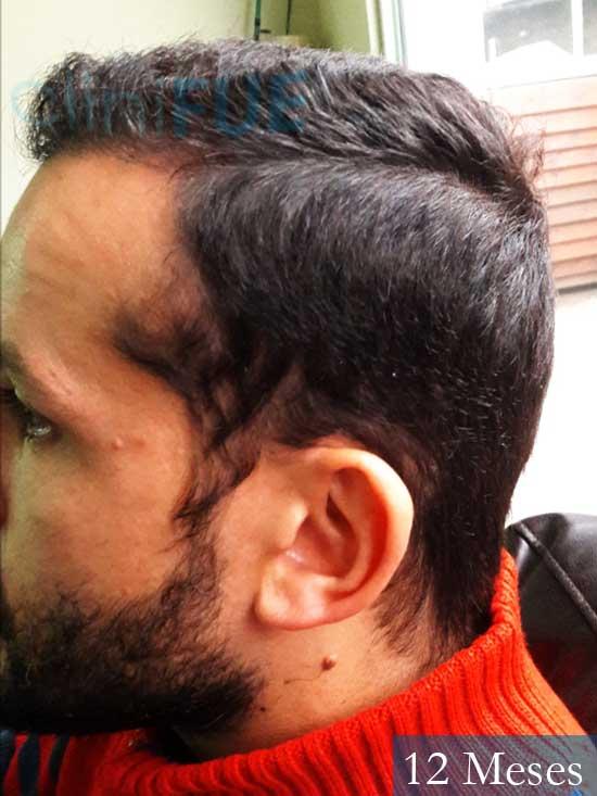 Sergio 38 Uruguay injerto de pelo 12 meses 5