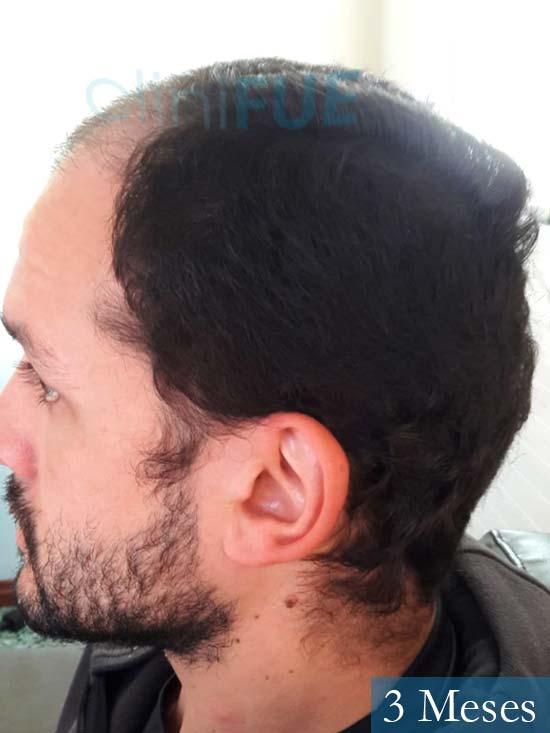 Sergio 38 Uruguay injerto de pelo 3 meses 4