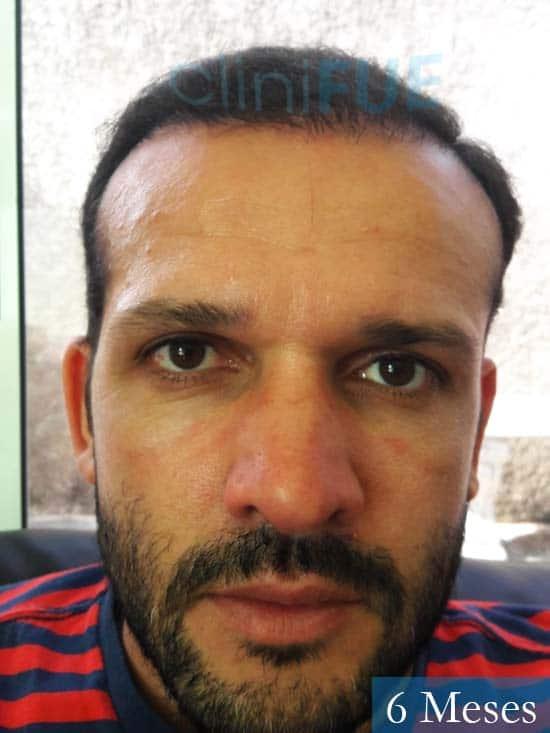 Sergio 38 Uruguay injerto de pelo 6 meses 1
