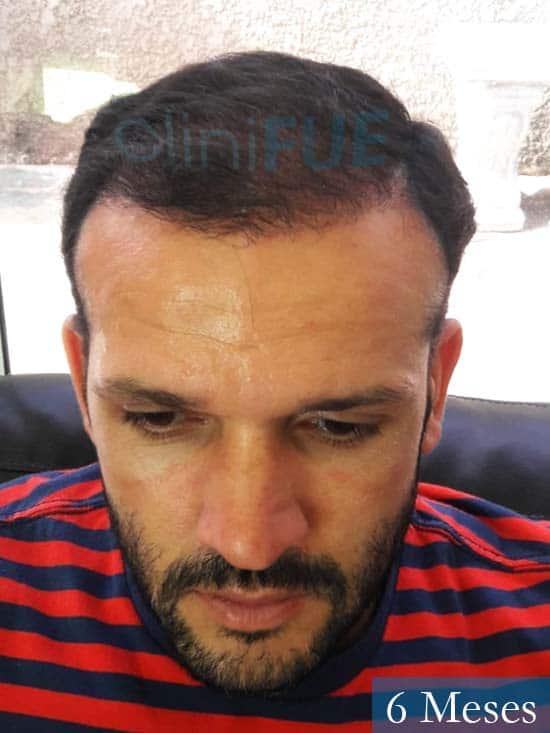 Sergio 38 Uruguay injerto de pelo 6 meses 2