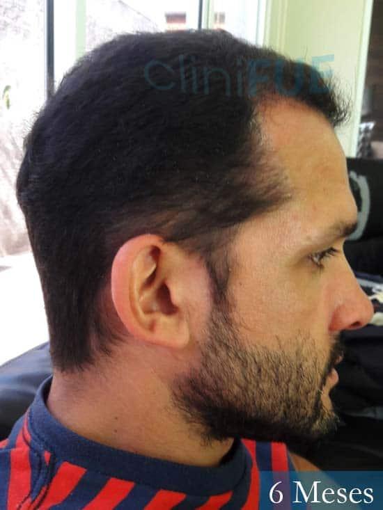 Sergio 38 Uruguay injerto de pelo 6 meses 4