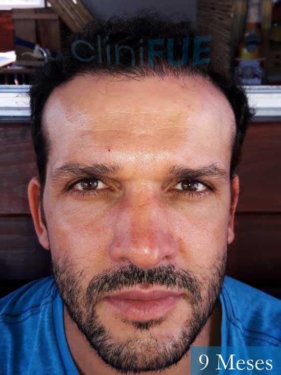 Sergio 38 Uruguay injerto de pelo 9 meses