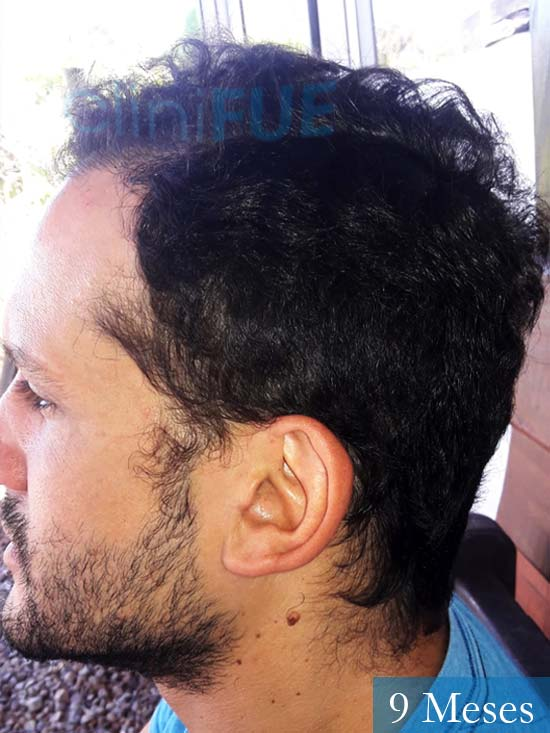 Sergio 38 Uruguay injerto de pelo 9 meses 4