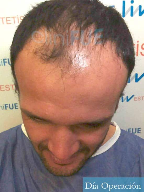 Sergio 38 Uruguay injerto de pelo dia operacion antes