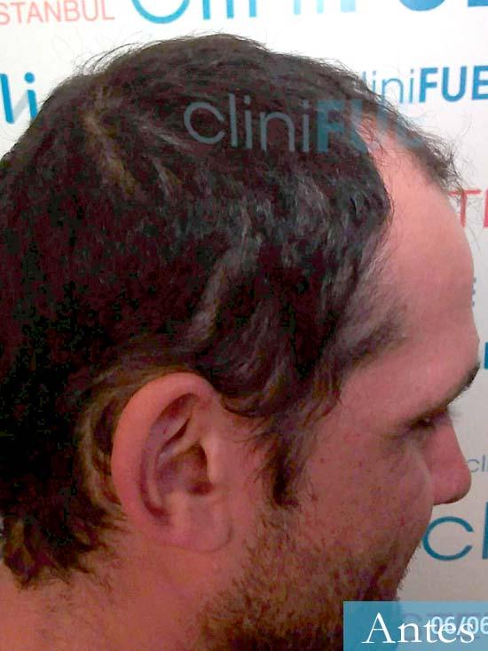 Sergio 38 Uruguay injerto de pelo dia operacion antes 3