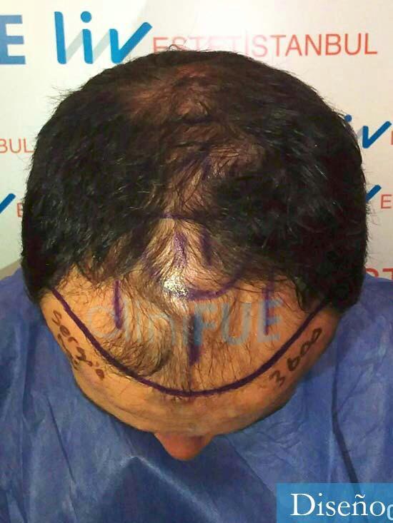 Sergio 38 Uruguay injerto de pelo dia operacion diseno 2