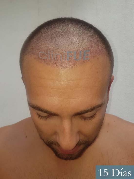 Carlos 30 Madrid injerto de pelo 15 dias 2
