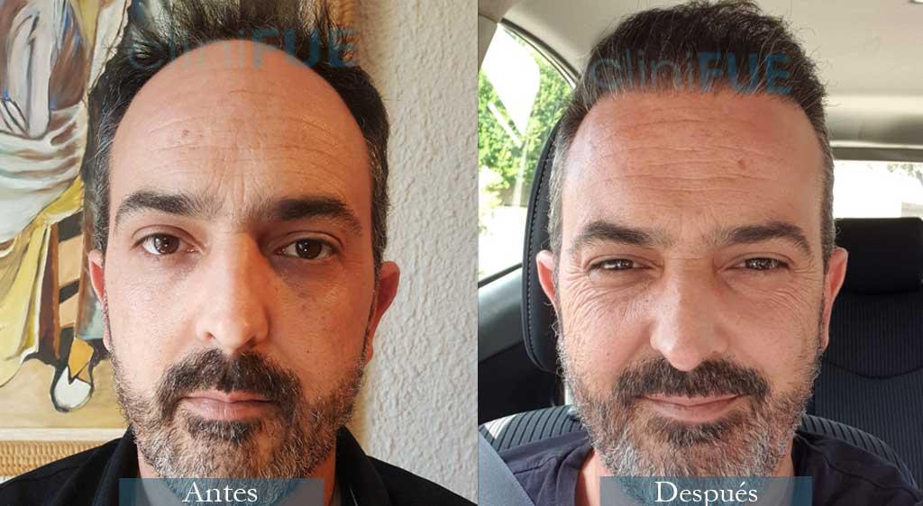 Injerto capilar de Daniel 41 Años de Barcelona con cliniFUE !!Esta muy contento¡¡