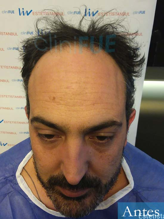 Daniel 41 Barcelona injerto de pelo dia operacion Antes