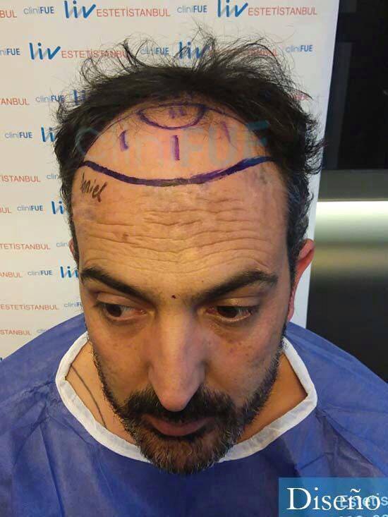 Daniel 41 Barcelona injerto de pelo dia operacion diseno